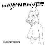 raw nerves
